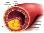 Visit......   https://realfoodfix.com.au/cholesterol-atherosclerosis-stress-real-cause/