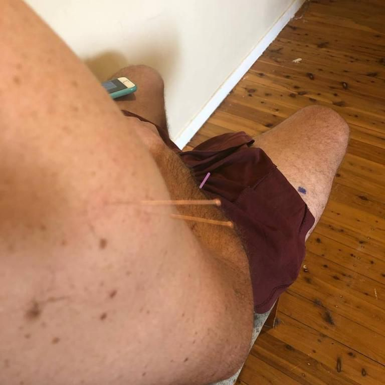 Sarah showing off her Dry Needling And massage Skills which she operates in Penrith in her private clinic as well.
