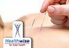 Healthwise - Acupuncture