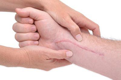 scar tissue release