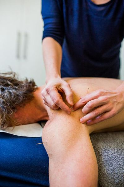 Dry Needling - great for deep tissue release, athletes and sports injuries and prevention