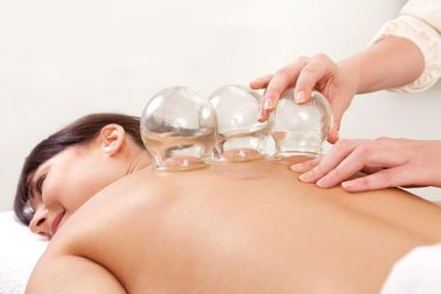 Experience the positive power of Cupping!