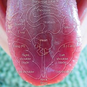 Ayurveda Dr. Rama Prasad  Wellness coach and trainer Tongue Diagnosis