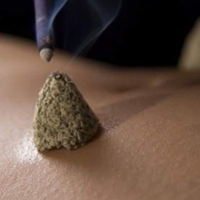 Japanese Acupuncture Moxa
