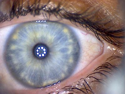 What does the iris reveal about you?